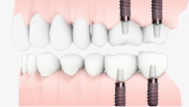 1.元の歯以上にかむ力が回復します。